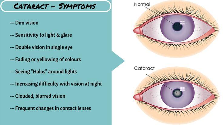 #Cataract #symptoms - MediFee