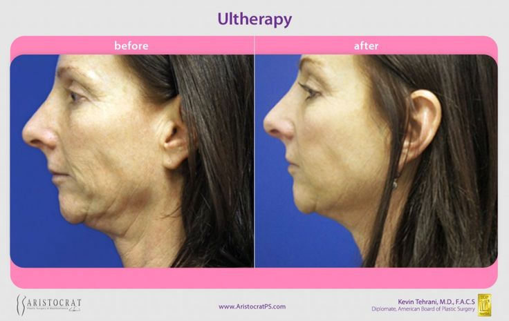 17 Best Images About Ultherapy On Pinterest Neck Lift