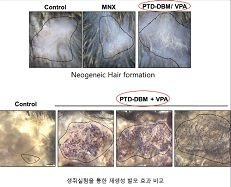 Scientists make biochemical material to prevent hair loss