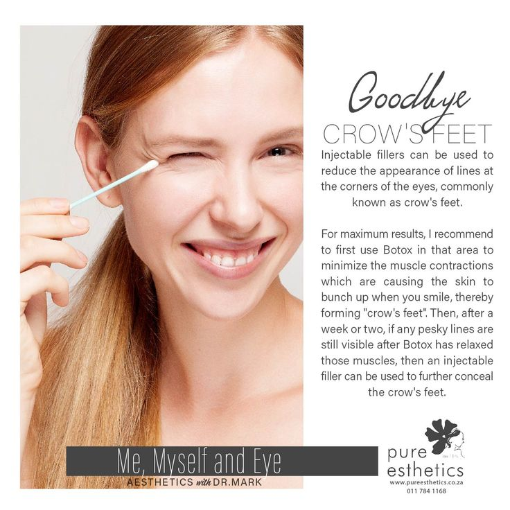 """Goodbye Crow's Feet Injectable fillers can be used to reduce the appearance of lines at the corners of the eyes, commonly known as crow's feet. For maximum results, I recommend to first use Botox in that area to minimize the muscle contractions which are causing the skin to bunch up when you smile, thereby forming """"crow's feet"""". Then, after a week or two, if any pesky lines are still visible after Botox has relaxed those muscles, then an injectable filler can be used to further conceal the…"""