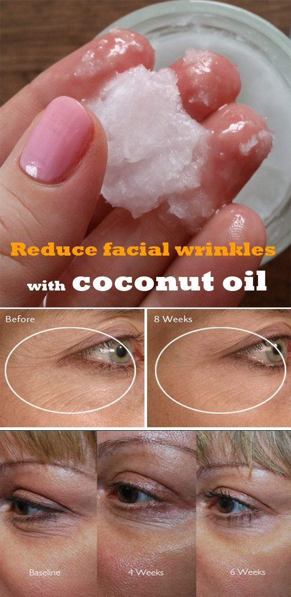 Reduce facial wrinkles with coconut oil DIY Beauty Tips, DIY Beauty Products #DIY