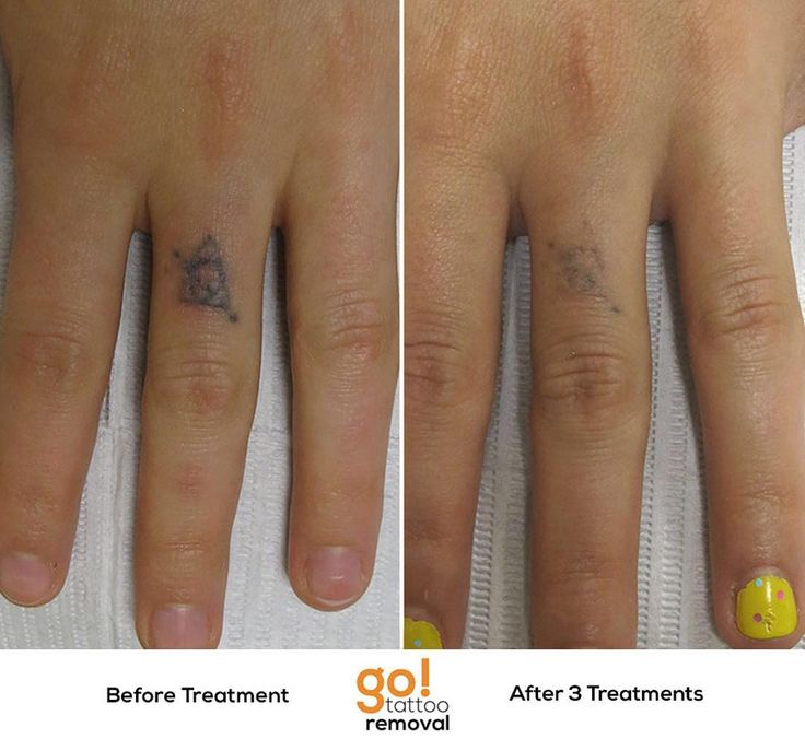 Best 25 finger tattoos fade ideas only on pinterest for Finger tattoos fade