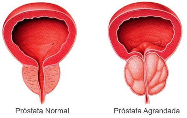 masajes con aceite de próstata