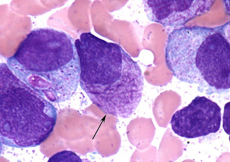 Η οξεία προμυελοκυτταρική λευχαιμία είναι ένα παράδειγμα για χρήση στοχευμένων θεραπειών