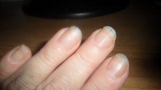 In just 6 weeks Gayle has achieved great-looking nails and receives frequent compliments on them.  She has gone from being an acrylic wearer to having her very own naturally-healthy nails.  www.askcosmetics.com