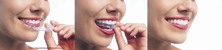 Dr. Oppenheimer the orthodontist care specialist, we are here to help you choose betweentradition braces or Invisalign. We are the most trusted dental specialists of New York. For the best orthodontic treatment contact Oppenheimer orthodontics today!  516 569 7753