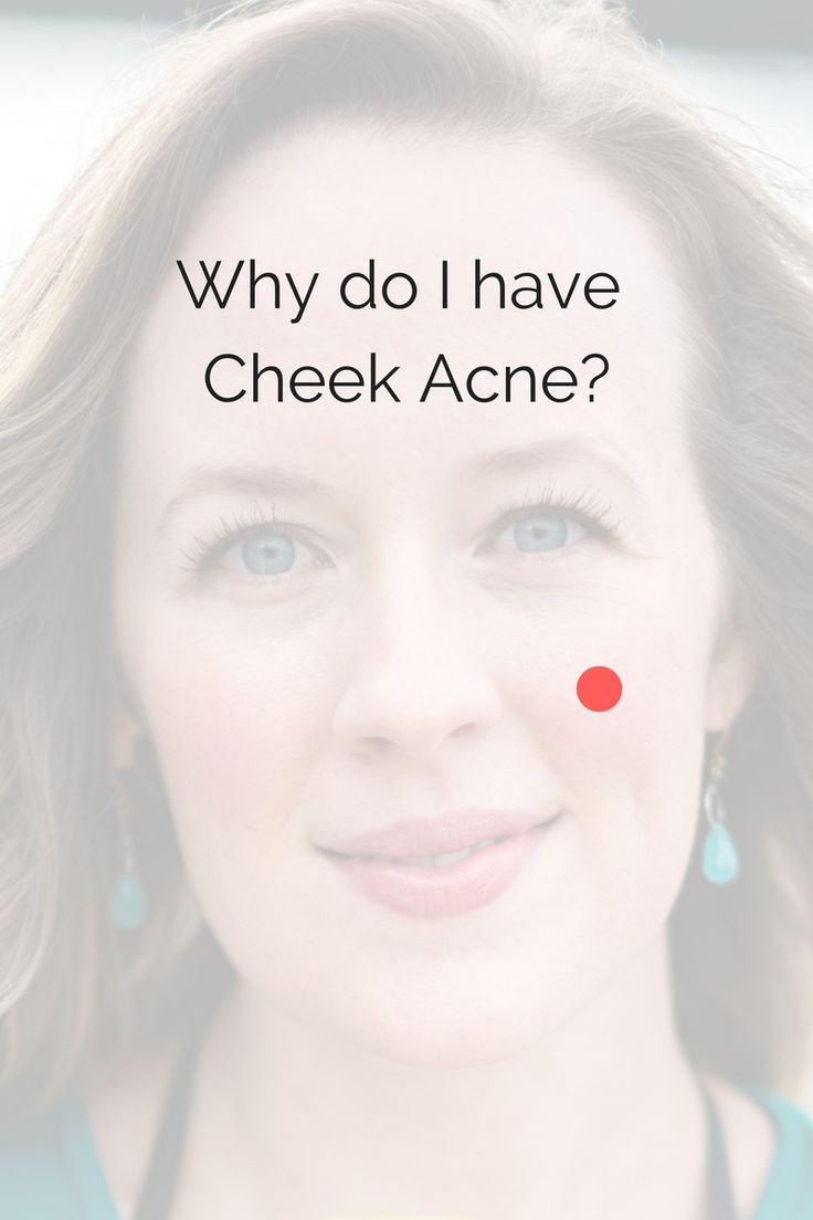 Why do you have acne on your cheek? We discuss the common causes here. #acne #skin #breakouts #zits #zitremedies #howtohealacnenaturally