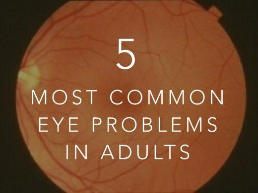 Common eye problems: Cataracts, Glaucoma, Diabetic retinopathy, Retinal detachment, Blindness