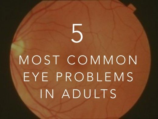 Common eye problems: Cataracts, Glaucoma, Diabetic retinopathy, Retinal detachment, Blindness