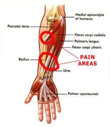 Forearm pain.  Forearm splints (feels like shin splints in your forearm); common injury from curls.