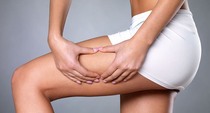 2 Cellulite Reduction Exercises You Should Try Before Summer