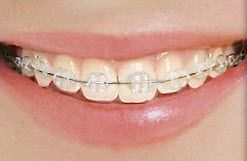 What different types of braces are there? Do I have options, even as an adolescent or teen?