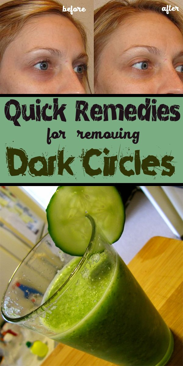 Quick Remedies For Removing Dark Circles