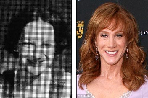 Kathy Griffin Plastic Surgery Before Amp After Plastic