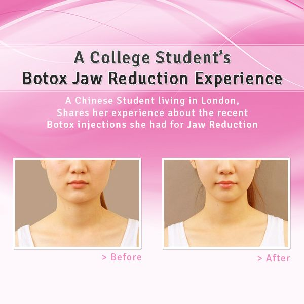 My Story: A College Student's Botox Jaw Reduction Experience... help clenching?