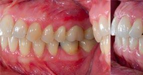 A blog about dental photography dental cameras and digital case presentation.
