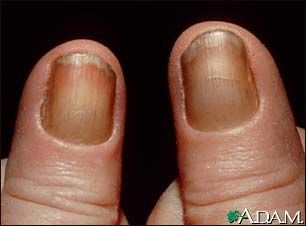 Yellow nail syndrome...what you should know...
