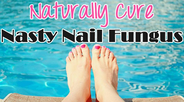 Maybe you've experienced it… The most common type of fungal infection…. nail fungus. It loves to grow in dark, warm, moist environments, affecting both toenails and fingernails. It will start out as yellow or white spots on one or more of the nails, and if left untreated, results in further discoloration, pain, and the crumbling …