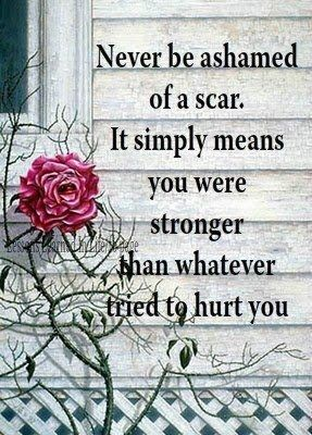 Never be ashamed of a scar.  It simply means you were stronger than whatever (or whomever) tried to hurt you.