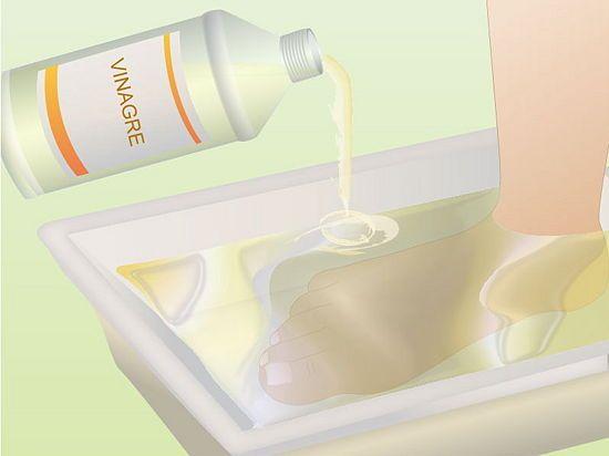 Cómo eliminar los hongos de las uñas de los pies (onicomicosis) - wikiHow
