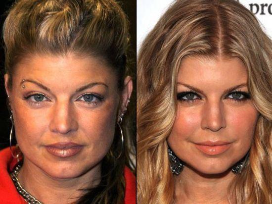Fergie plastic surgery