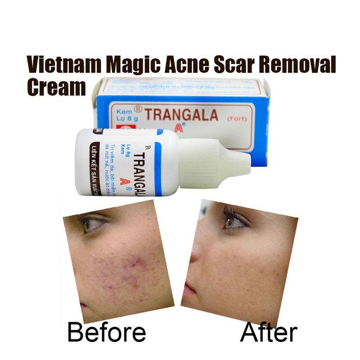 Vietnam Pimple Cicatrice Crème Taches D'acné Traitement Vergetures Enlever L'acné Visage Huile Essentielle Acné déplacement de Cicatrice Crème
