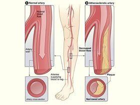 Arterial doppler study of legs