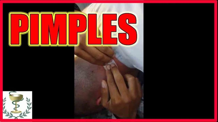 Removal pimples on his neck - All pimples Channel