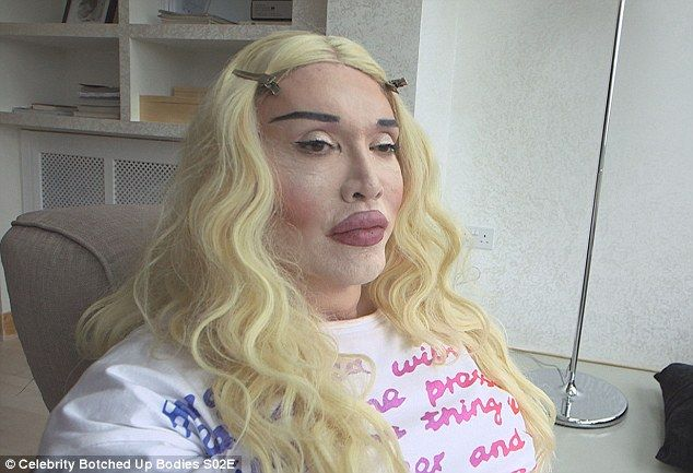 Up close and personal: Pete Burns has revealed the shocking extent of his plastic surgery obsession in the upcoming episode of Channel 5's Celebrity Botched Up Bodies