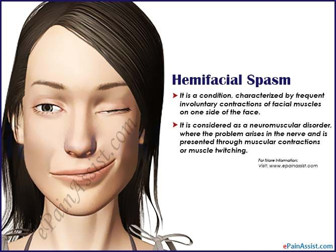 97 best Face Mouth and Throat Pain images on Pinterest ...