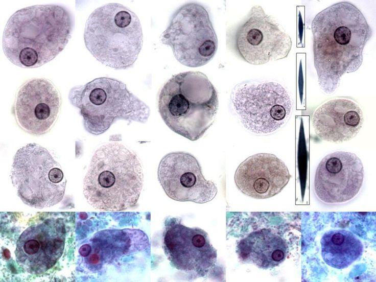 Entamoeba histolytica (trophozoite) | Motility: progressive unidirectional movement | Pseudopod: finger-like | Nucleus: 1 | Karyosome: Central | Peripheral Chromatin: Fine | Cytoplasm: Clean | Inclusions: RBCs