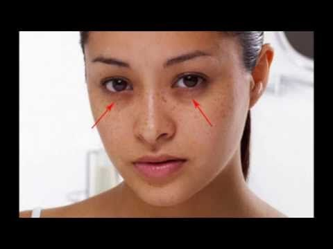 How to get rid of dark circles under eyes, wrinkles under eyes and puffiness under eyes? This is a best solution for your problem. Revitol eye cream will help you to reduce those dark under-eye circles and puffiness and simultaneously reduce the appearance of fine. Clikcs http://bit.ly/revitol-eyecream for get solution!!!