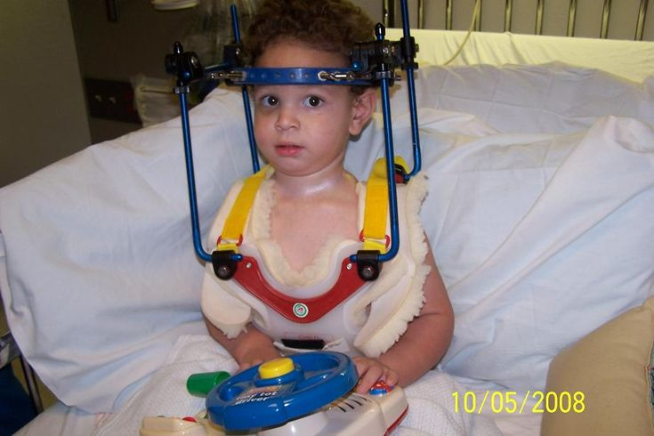 Joel's Journey - Joel was 18 months old and internally decapitated while riding in a forward-facing car seat. Had he been rear-facing, his injuries would have been prevented. Joel's grandfather is now a huge advocate of ERF (extended rear facing)