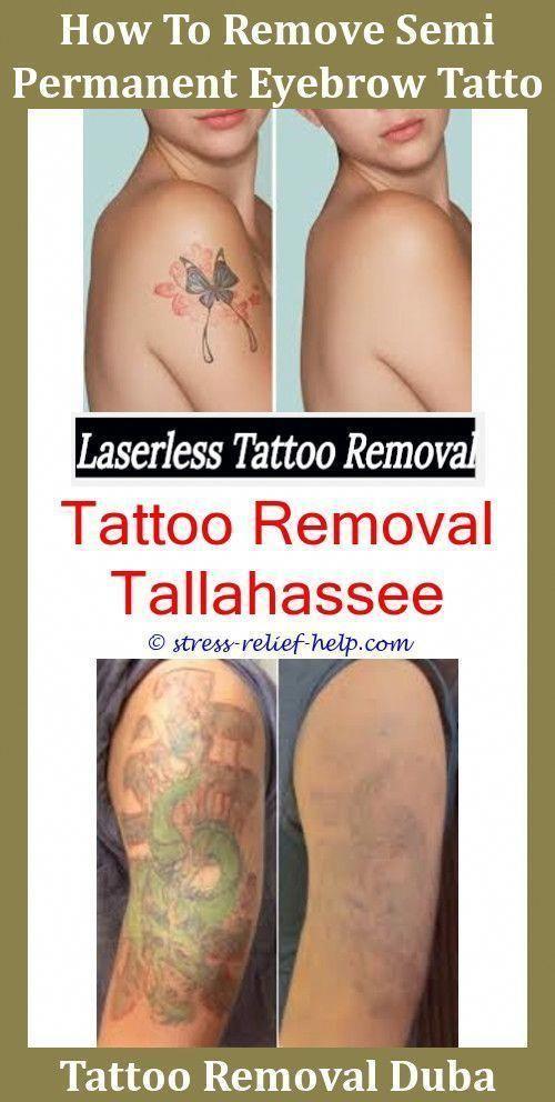 Laser Tattoo Rejuvi Tattoo Removal Cream Price Does Tattoo Removal ...