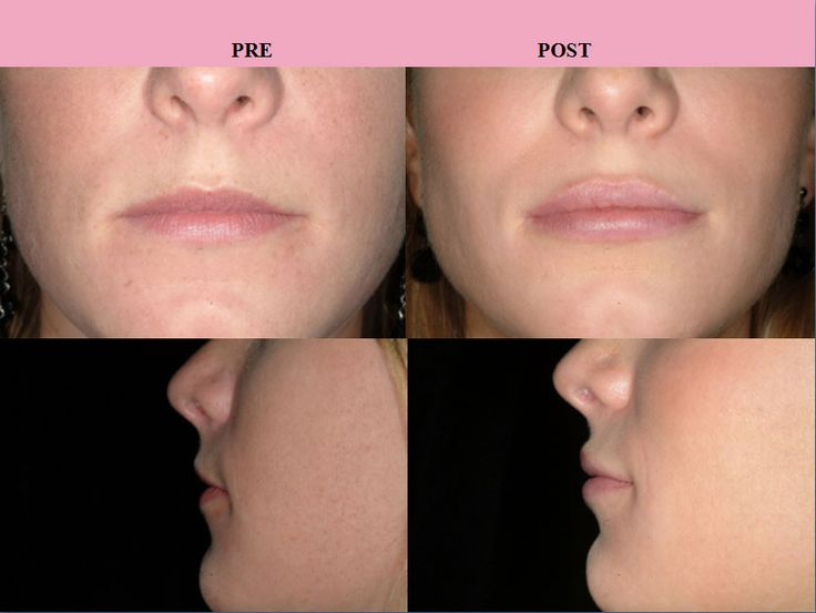 Lip Filler (before/after) from different angles.  www.kumihealth.com