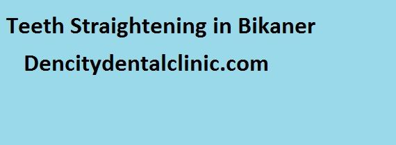 teeth straightening in Bikaner - Get the idea about the cost of Invisalign Cost, teeth straightening, invisible braces, straighten teeth without braces, and clear aligners teeth braces cost in Bikaner at dencitydentalclinic.com. We provide each and everything to our patient very clear before the treatment. You can call us or mail us to get details about teeth straightening.