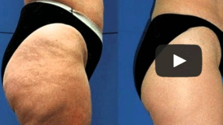 Truth About Cellulite Treatments
