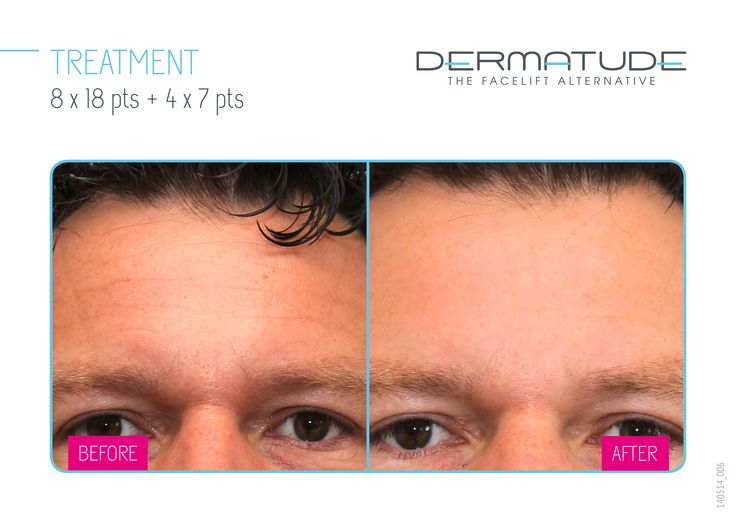 Before and After forehead #Dermatude