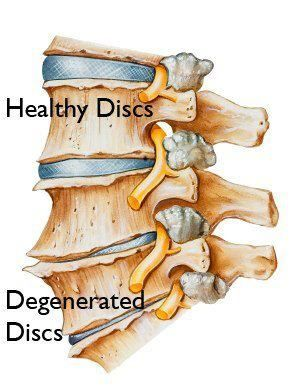 Degenerative disc disease and lack of orgasm
