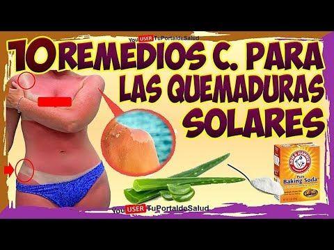 elimina las quemaduras solares con estos 10 remedios caseros