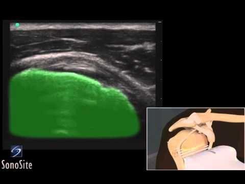 Guide 3D: Esame ecografico del tendine sottoscapolare - Sistema a ultras...