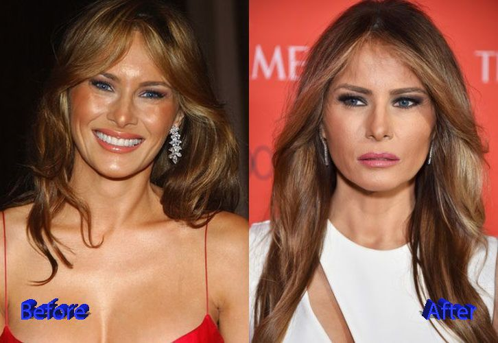 Melania Trump Before and After Facelift - Plastic Surgery Gossips