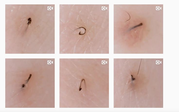 This Instagram Account Is The Dr. Pimple Popper For Ingrown Hairs