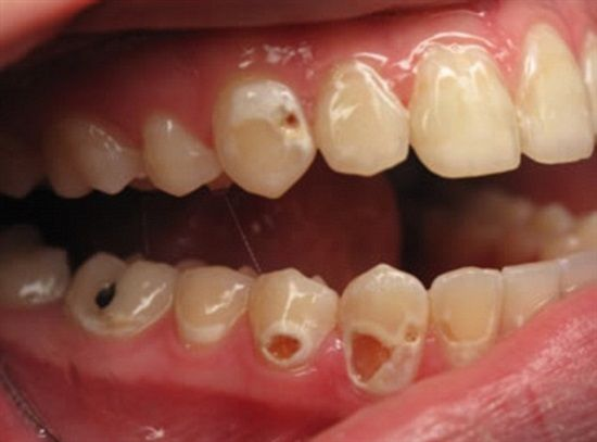 Dentaltown - Please brush your teeth with a fluoride toothpaste twice a day for about two minutes, floss before bedtime, and have your teeth cleaned every 3 to 6 months.