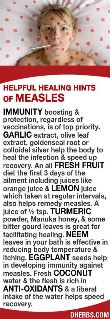 Garlic & olive leaf extract, goldenseal or colloidal silver help heal & speed up recovery. An all fresh fruit diet the first 3 days including lemon juice taken at regular intervals helps remedy measles. A juice of ½ tsp. turmeric powder, honey & bitter gourd leaves great for facilitating healing. Neem leaves in the bath help fever & itching. Eggplant seeds help develop immunity against it. Fresh coconut water & flesh are rich in anti-oxidants & a liberal intake of the water helps speed…