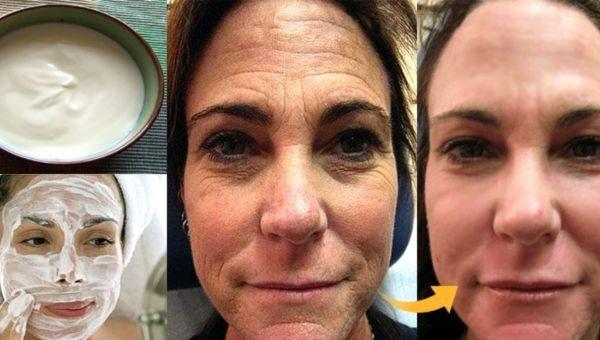 Ještě nedávno vypadala vaše pokožka skvěle, teď se na ní ale pomalu objevují vrásky? Máme pro vás jednoduchý recept, díky kterému minimalizujete příznaky stárnutí. Suroviny je snadné sehnat a již po prvním použití se dostaví výsledky. Samozřejmě, masku nanášíme na předem umytý obličej. Některé ingredience mohou způsobit alergickou reakci, proto