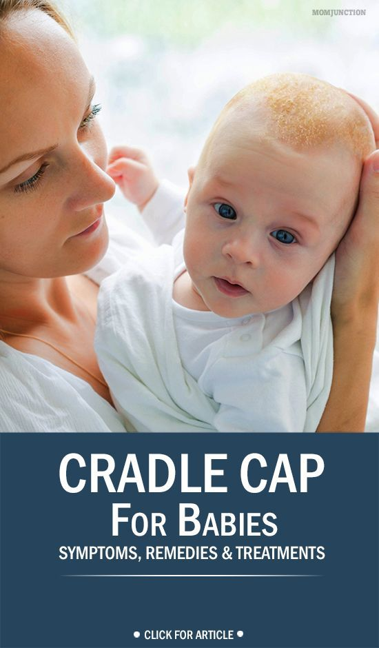 Cradle Cap For Babies - Symptoms, Remedies & Treatments You Should Be Aware Of