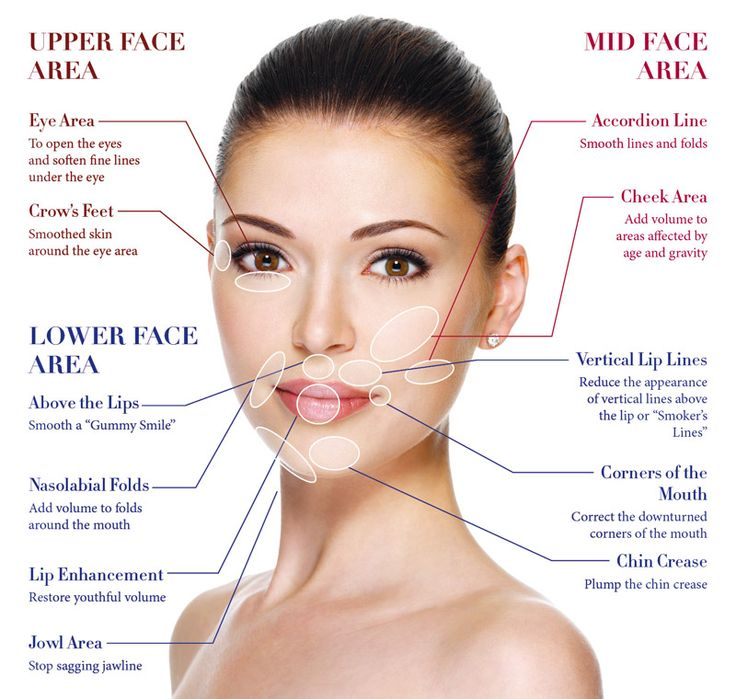 dermal_fillers maping best photo 2016