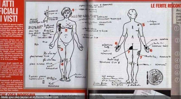 Princess Diana Cause of Death | ... photo illustration autopsy pictures of princess diana princess diana
