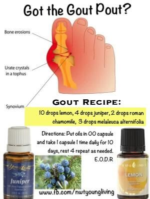 home remedy for gout in hip gout treatment painkillers philippine herbs to lower uric acid